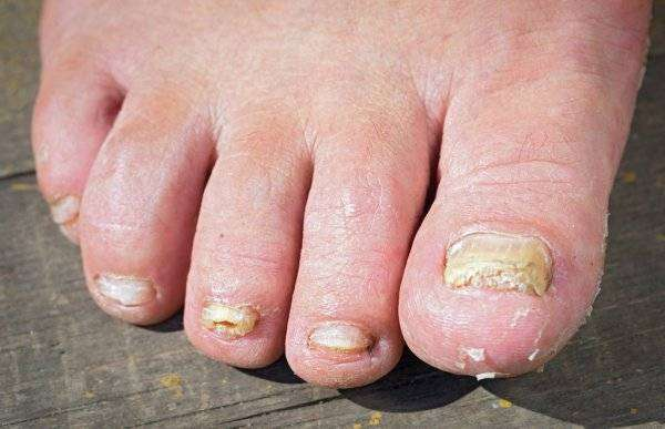 depositphotos_116292624-stock-photo-fungus-infection-on-nails-of.jpg