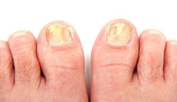 depositphotos_10734833-stock-photo-toenails-infected-with-a-fungus.jpg