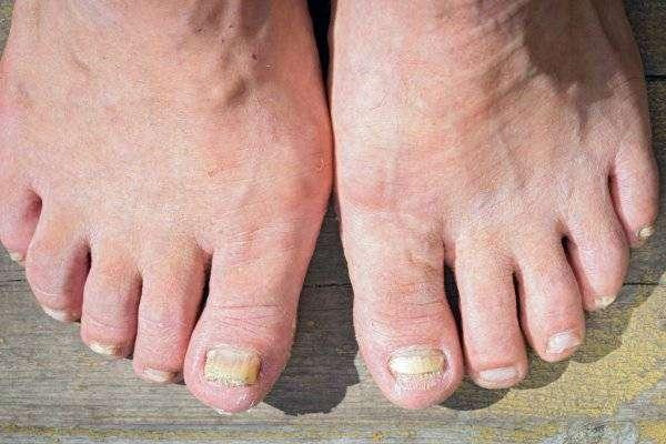 depositphotos_115511618-stock-photo-a-toenail-fungus-at-the.jpg