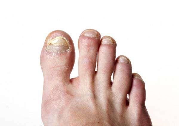 depositphotos_12359806-stock-photo-toenail-fungus.jpg