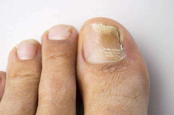 depositphotos_42438423-stock-photo-fungal-nail-infection.jpg