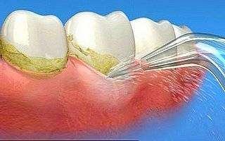 Назначение ирригатора полости рта