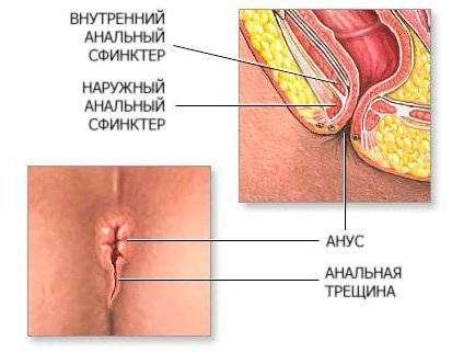 analyniy_seks000001.jpg