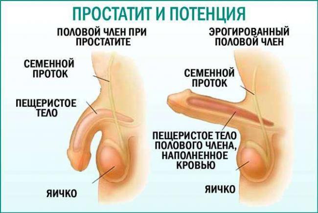 Prostatit-i-potencija.jpg